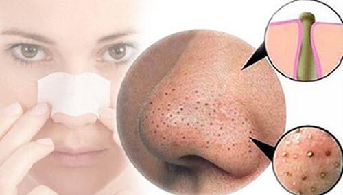 Cách trị mụn đầu đen ở mũi và má nhanh nhất -Loại bỏ mụn sau 1 đêm 2