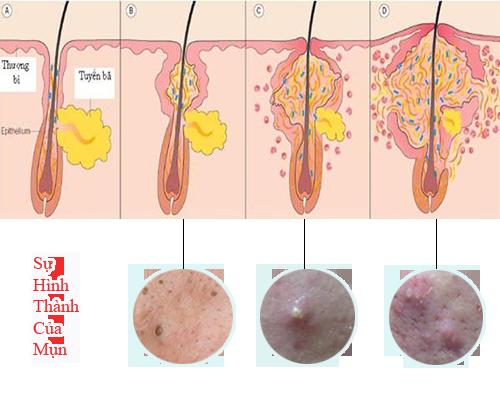 Cách trị mụn trứng cá hiệu quả nhanh nhất - sự hình thành của mụn