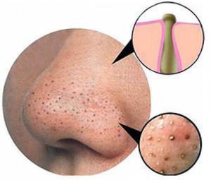 Mụn cám thường xuất hiện ở vùng cằm, trán và đặc biệt là vùng mũi