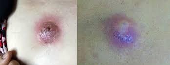 Mụn bã đậu nếu không được điều trị sớm có thể gây bội nhiễm, viêm loét đau đớn và điều trị khó khăn