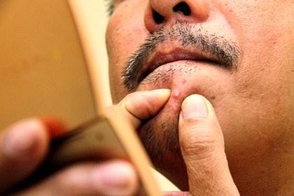 Mụn mọc ở mép gây đau nhức và có mủ - Liệu có phải mụn đinh râu