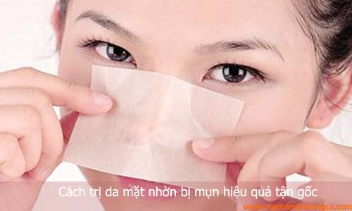 Cách trị da mặt nhờn mụn hiệu quả tận gốc