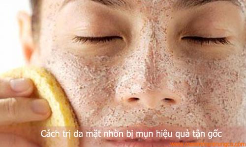 trị da mặt nhờn mụn