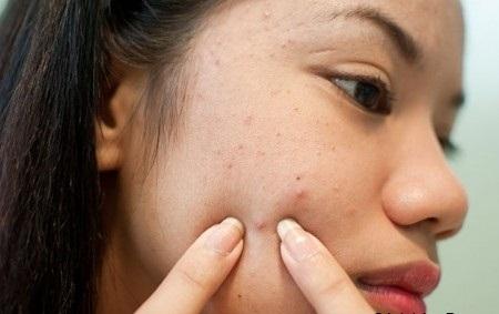Bà bầu mặt nổi mụn nên bôi thuốc trị mụn loại nào 6