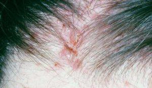 mụn trứng cá mọc trên da đầu